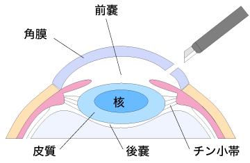 ①眼球を切開し、水晶体の前嚢を切り取る